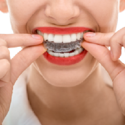 <br>Invisalign® at Fox Dental Excellence