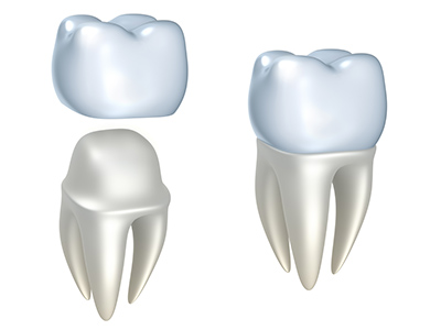Dental Crowns by Fox Dental Excellence in Mason, OH.