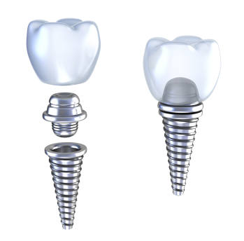 Diagram of dental Implants by dentist in Mason, OH.