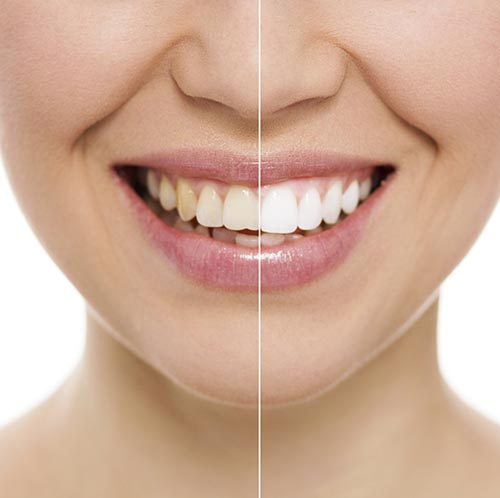 Teeth Whitening at Fox Dental Excellence
